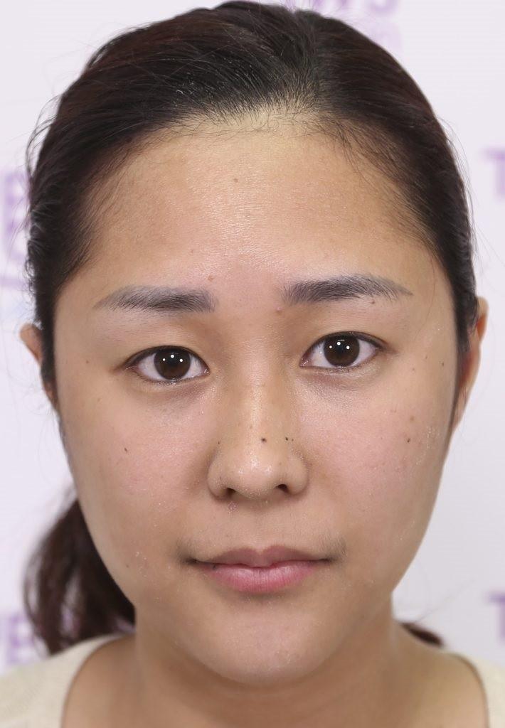 แชร์ประสบการณ์สาวที่ไม่มีชั้นตา กับการทำตาสองชั้นครั้งแรก