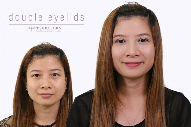 """แชร์ประสบการณ์การทำศัลยกรรมตาสองชั้นหวานๆ ดั่งใจ ที่ """"ธีรพรคลินิก"""" จากคุณหนึ่งฤทัย"""