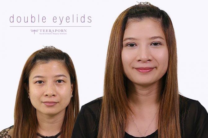 """แชร์ประสบการณ์การทำศัลยกรรมตาสองชั้นจากคุณหนึ่งฤทัย ได้ตาสองชั้นหวานๆ ดั่งใจ ที่ """"ธีรพรคลินิก"""""""