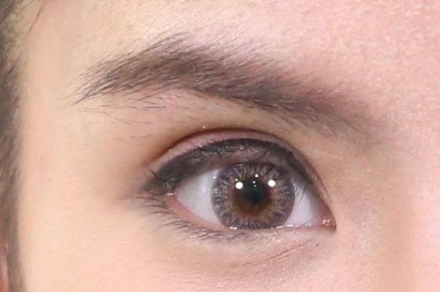 การทำตาสองชั้นกับธีรพรคลินิก ดีอย่างไร