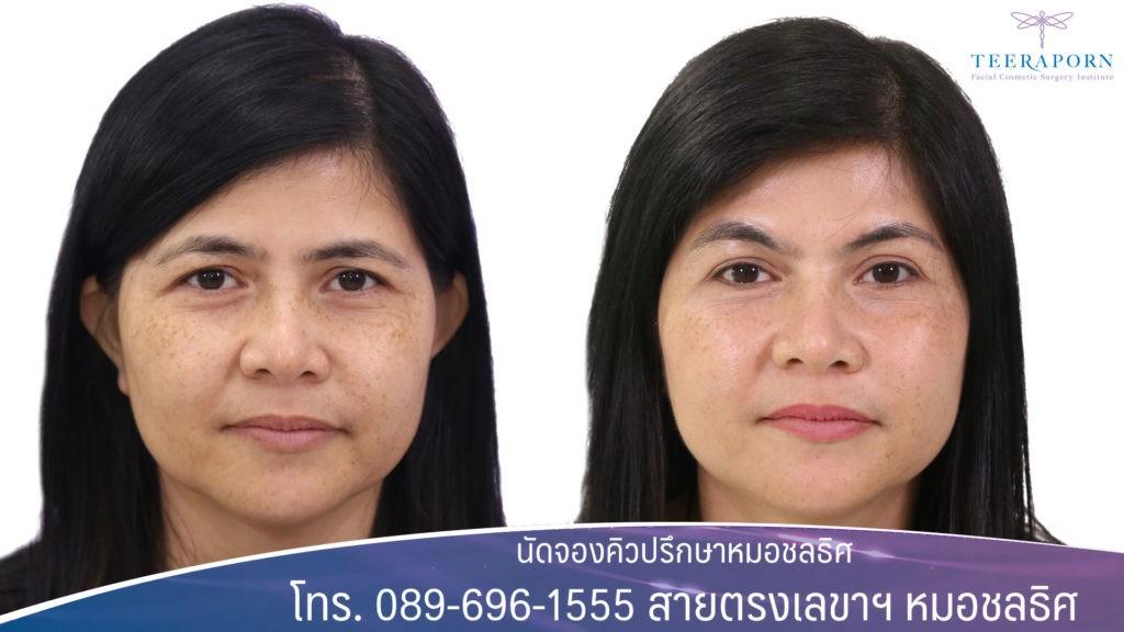 การยกคิ้ว (Brow Lift) ปกติแล้วการยกคิ้วเป็นส่วนหนึ่งของการศัลยกรรมดึงหน้าหรือหน้าผาก