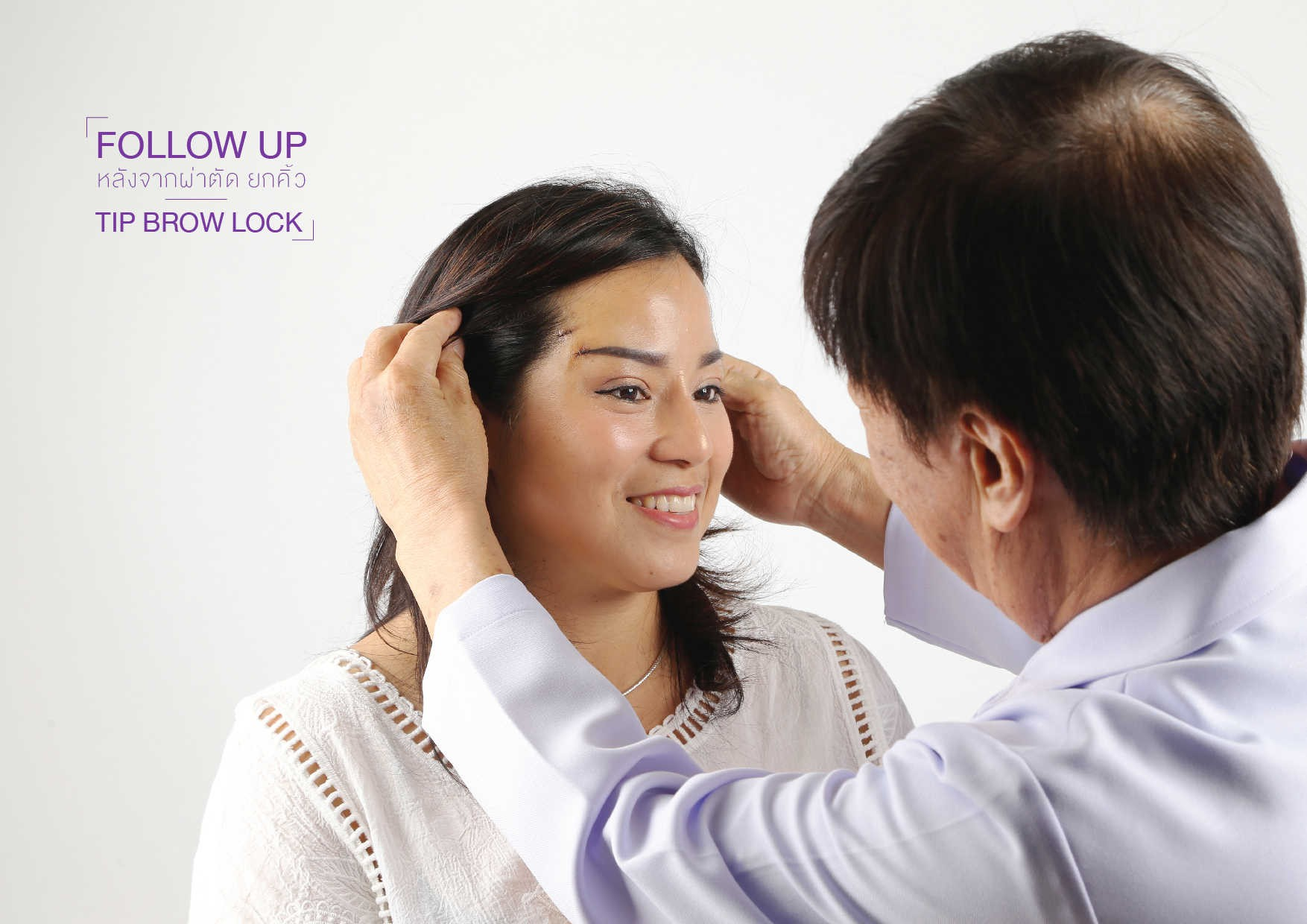 ยกคิ้ว (Brow Lift) ปกติแล้วการยกคิ้วเป็นส่วนหนึ่งของการศัลยกรรมดึงหน้าหรือหน้าผาก เมื่ออายุมากขึ้น คิ้วจะเลื่อนตำแหน่งลงมาใกล้ตามากขึ้นโดยที่เราไม่รู้ตัว