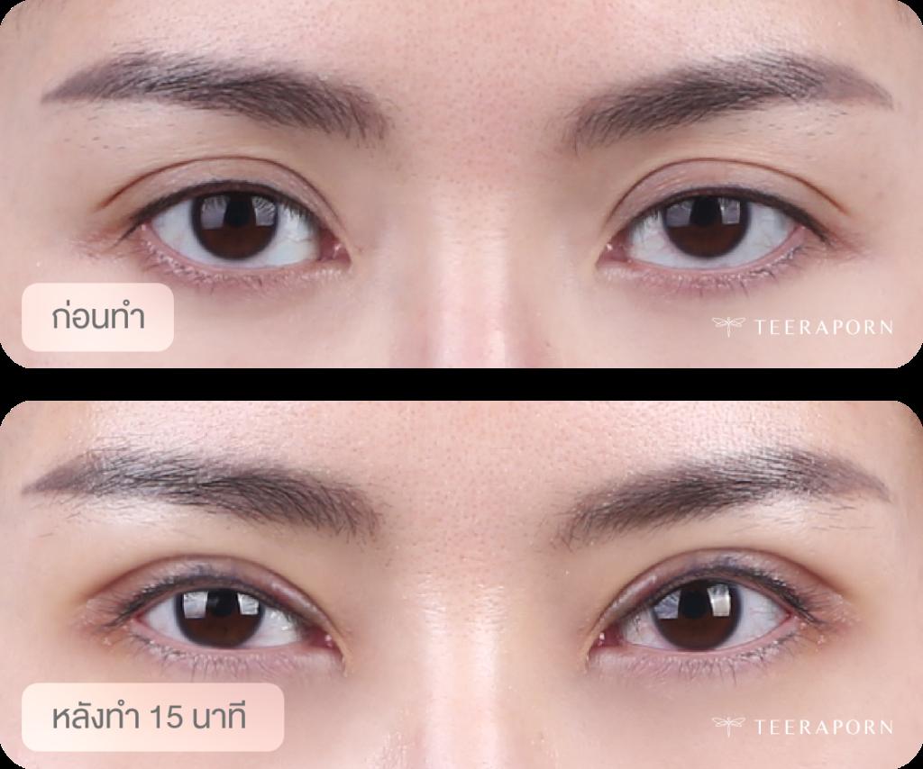 ตาสองชั้นแก้กล้ามเนื้อตาอ่อนแรง โรคยอดนิยมช่วง WFH