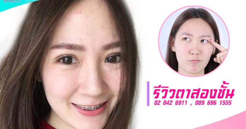 ทำตาสองชั้นแบบกรีดสั้น เปลี่ยนสาวหมวยให้ตาสวยมีเสน่ห์มากขึ้น