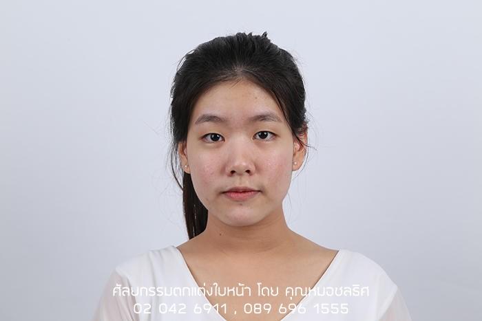 รีวิวทำตา 2 ชั้น จากสาวหน้าหมวย-ไร้ชั้นตา เป็นสาวมีชั้นตาที่สวยเป็นธรรมชาติ และดวงตากลมโตขึ้น