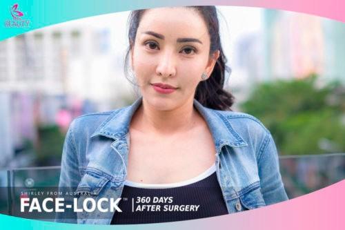 รีวิวดึงหน้า Update หลังทำศัลยกรรมดึงหน้า FACE-LOCK ครบ 1 ปี ยังคงสวยอ่อนเยาว์