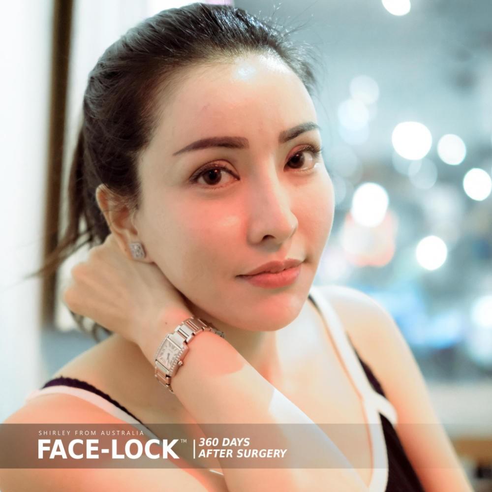 รีวิวดึงหน้า Update หลังทำศัลยกรรมดึงหน้า FACE-LOCK ช่วงล่างจาก ธีรพรคลินิก ครบ 1 ปี ยังคงสวยอ่อนเยาว์