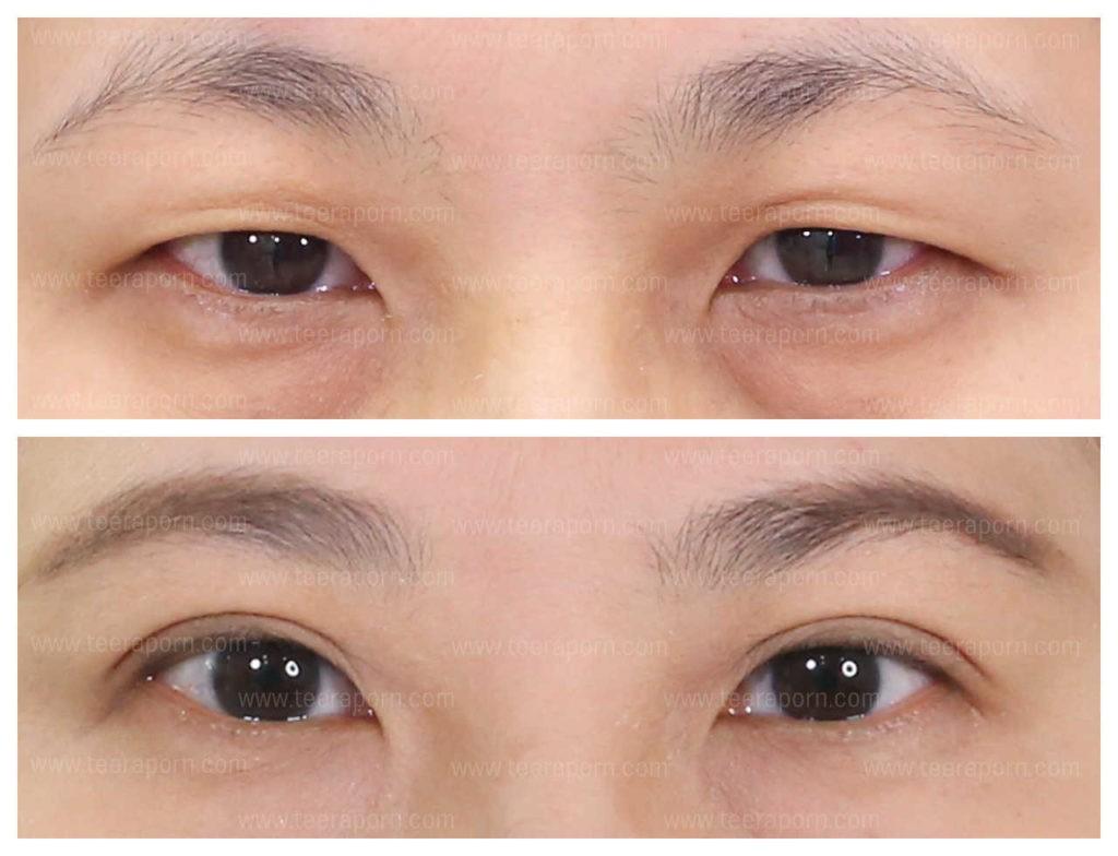 ศัลยกรรมตาสองชั้น