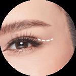 ล็อคหางตา (CROWFEET-LOCK)